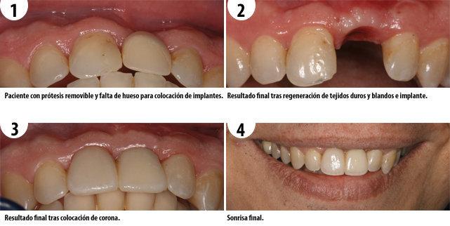 implantes-dentales-con-regeneracion