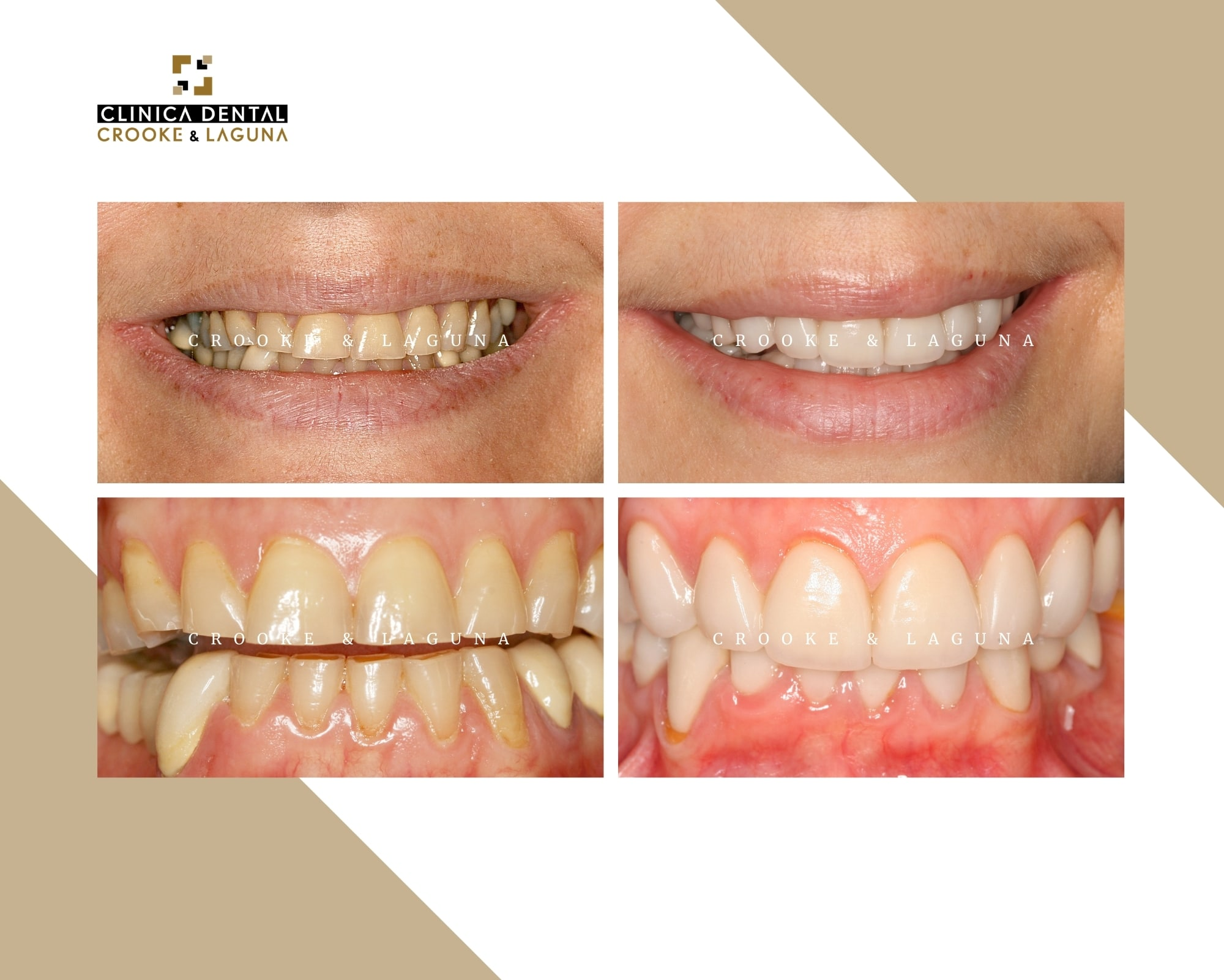 Rehabilitation with crowns and veneers