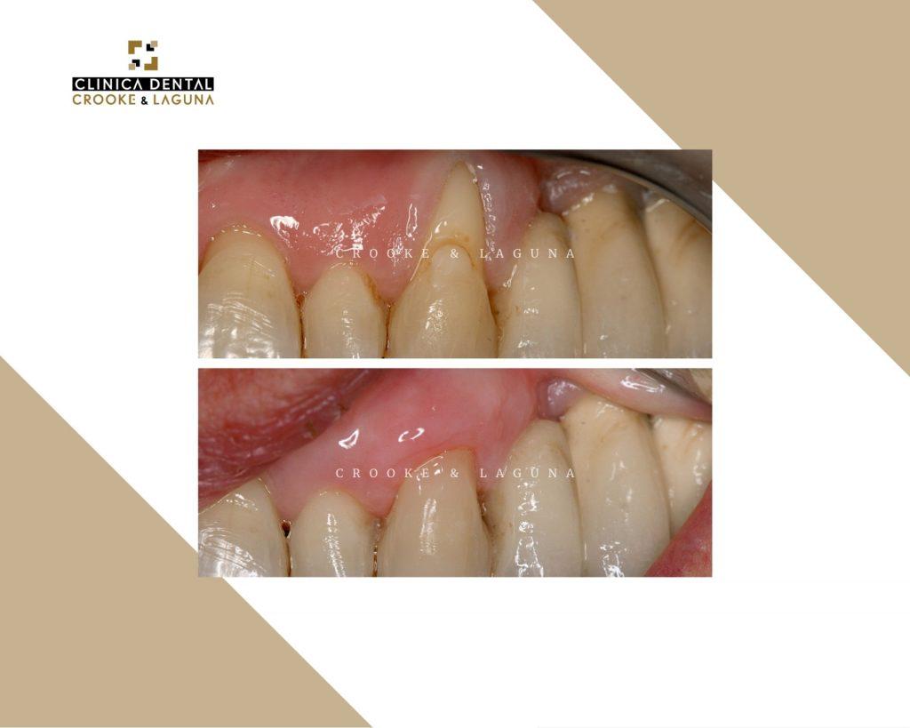 Injerto de encia dentales - crooke-laguna