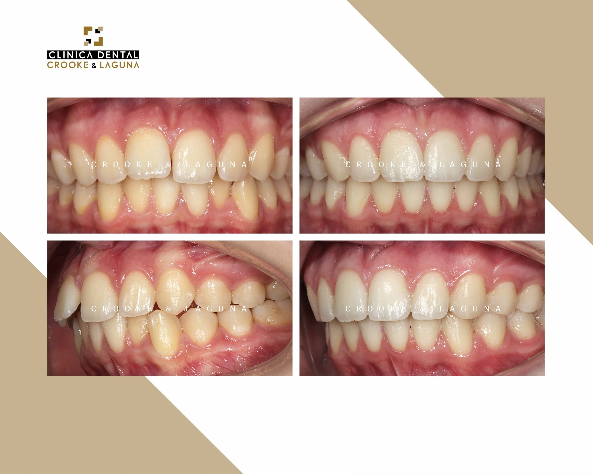 Ortodoncia en dientes - crooke laguna