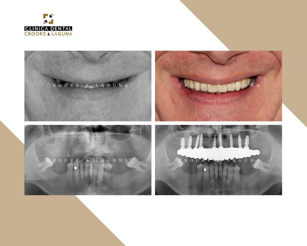 Rehabilitacion con implantes dentales - crooke laguna